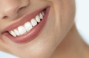 Limpieza + blanqueamiento dental